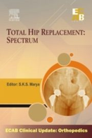 ksiazka tytuł: Total Hip Replacement Spectrum - ECAB autor: