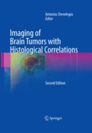 ksiazka tytuł: Imaging of Brain Tumors with Histological Correlations autor: